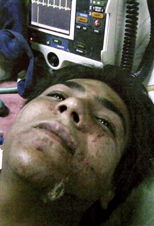 This is how Reuters describes the photos [Azam Amir Kasav, an injured suspected militant, lies on a bed in this undated handout picture released by Mumbai police on November 30, 2008.]