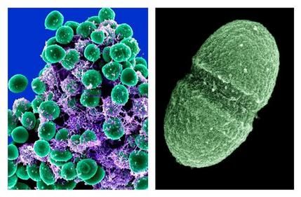 At left, undated handout image provided by the National Institute of Allergy and Infectious Diseases (NIAID) shows a clump of Staphylococcus epidermidis bacteria (green) in the extracellular matrix, which connects cells and tissue, taken with a scanning electron microscope, showing. At right, undated handout image provided by the Agriculture Department showing the bacterium, Enterococcus faecalis, which lives in the human gut. (AP Photo/NIAID, Agriculture Department)